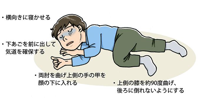症状 初期 アルコール 中毒